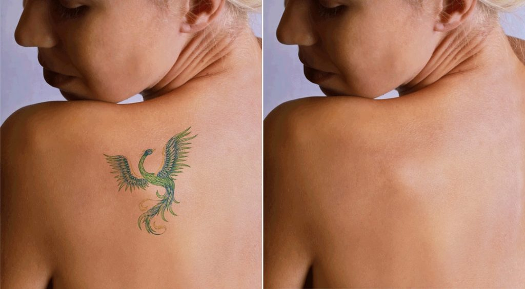 5 Things To Know Before You Get Your Tattoo Removed
